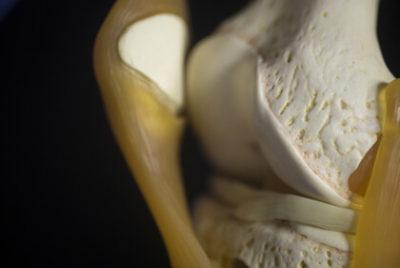 Symptom vid meniskskada